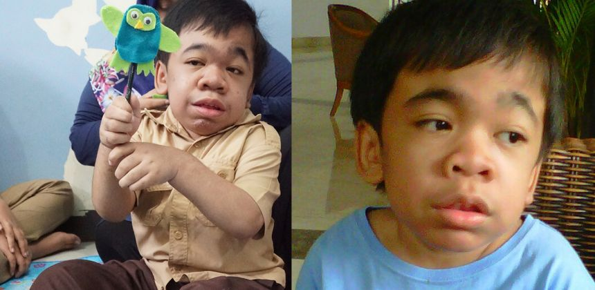What Is Mps >> What Is Hunter Syndrome Yayasan Mps Penyakit Langka